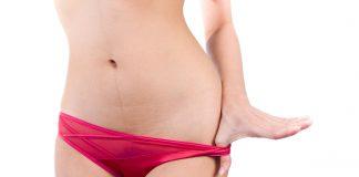 MamiWiki Zervixschleim Unterhose Ausfluss Periode Schwanger